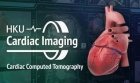 Advanced Cardiac Imaging: Cardiac Computed Tomography (CT)